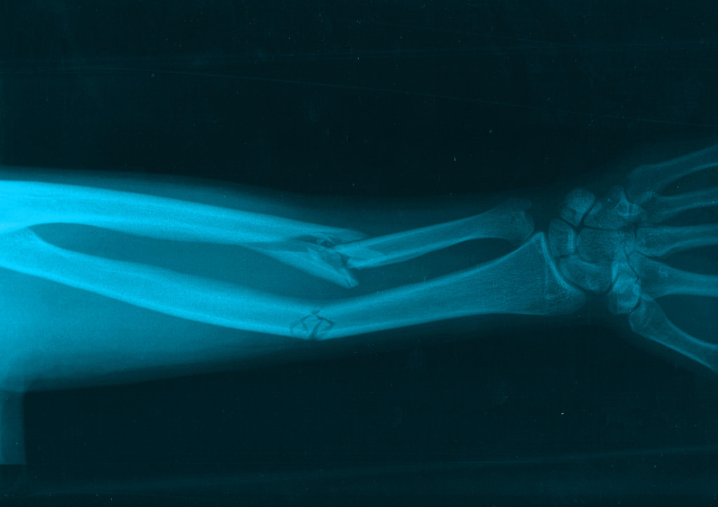 x-ray of a broken arm