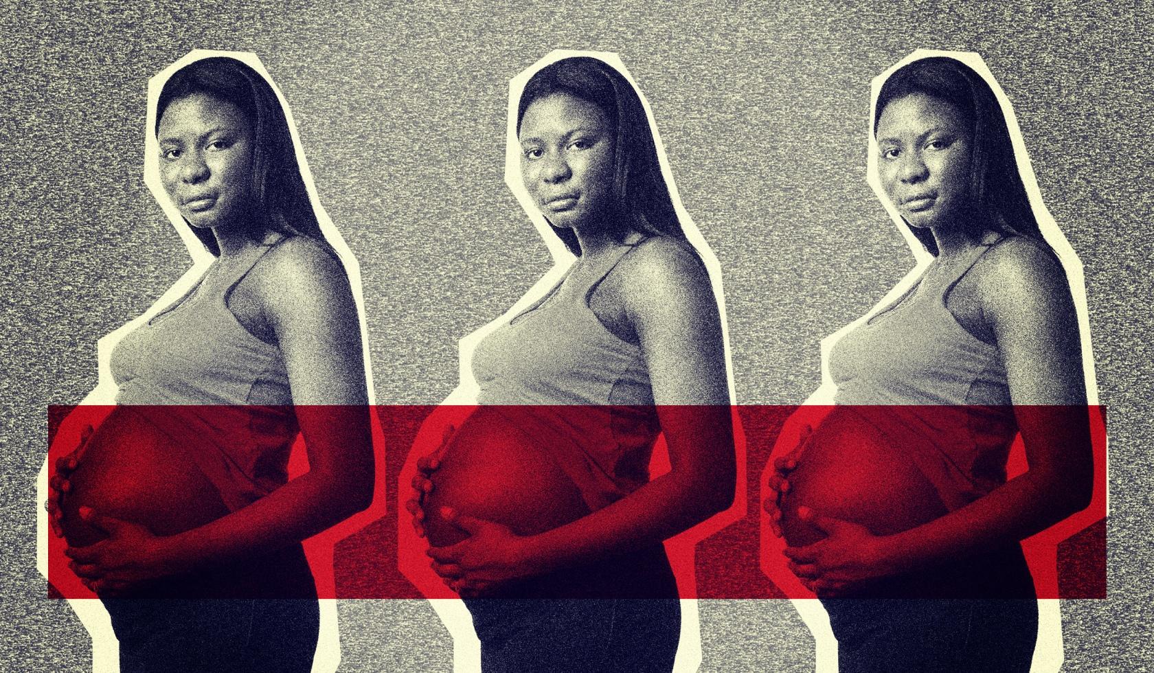 Black, Hispanic Women Report More Pain Postpartum but Receive Less Opioid Medication