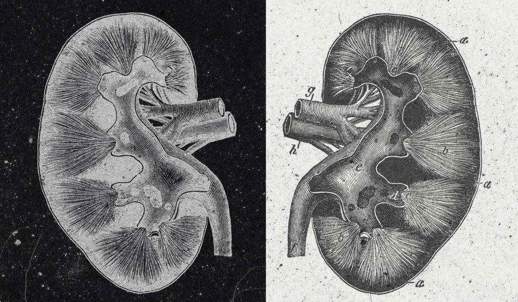 The Organ Transplant Story You Don't Hear