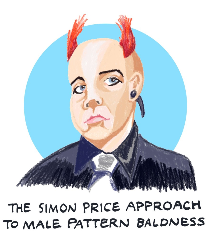 The Simon Price approach to male pattern baldness
